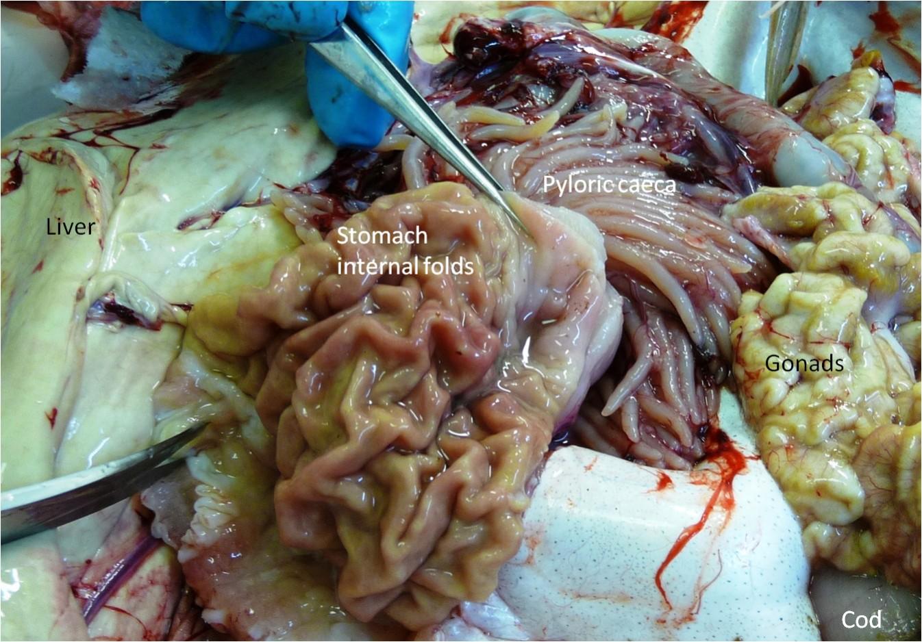 U00bb Digestive System